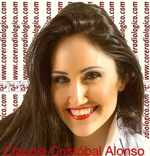 CLAUDIA CRISTOBAL ALONSO